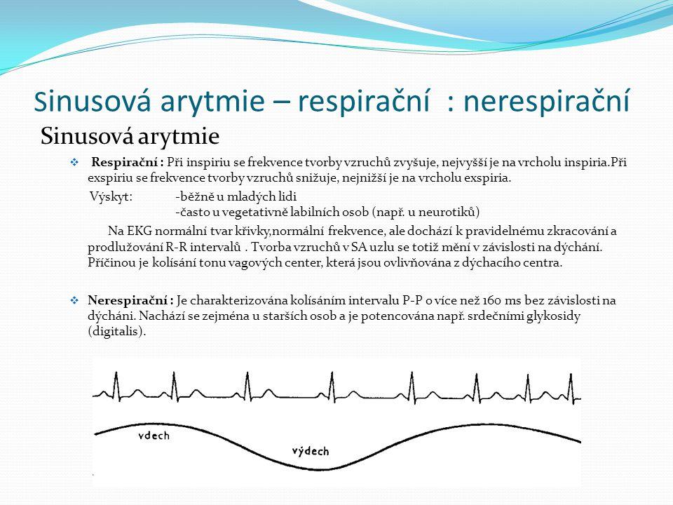 Sinusová arytmie – respirační : nerespirační
