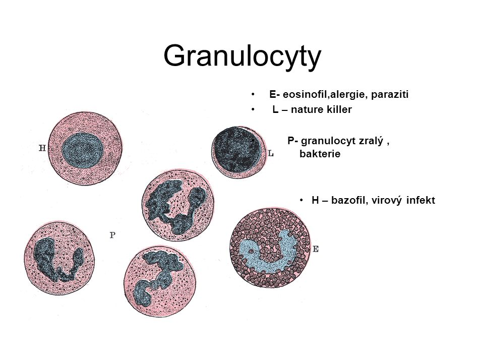 Granulocyty E- eosinofil,alergie, paraziti L – nature killer