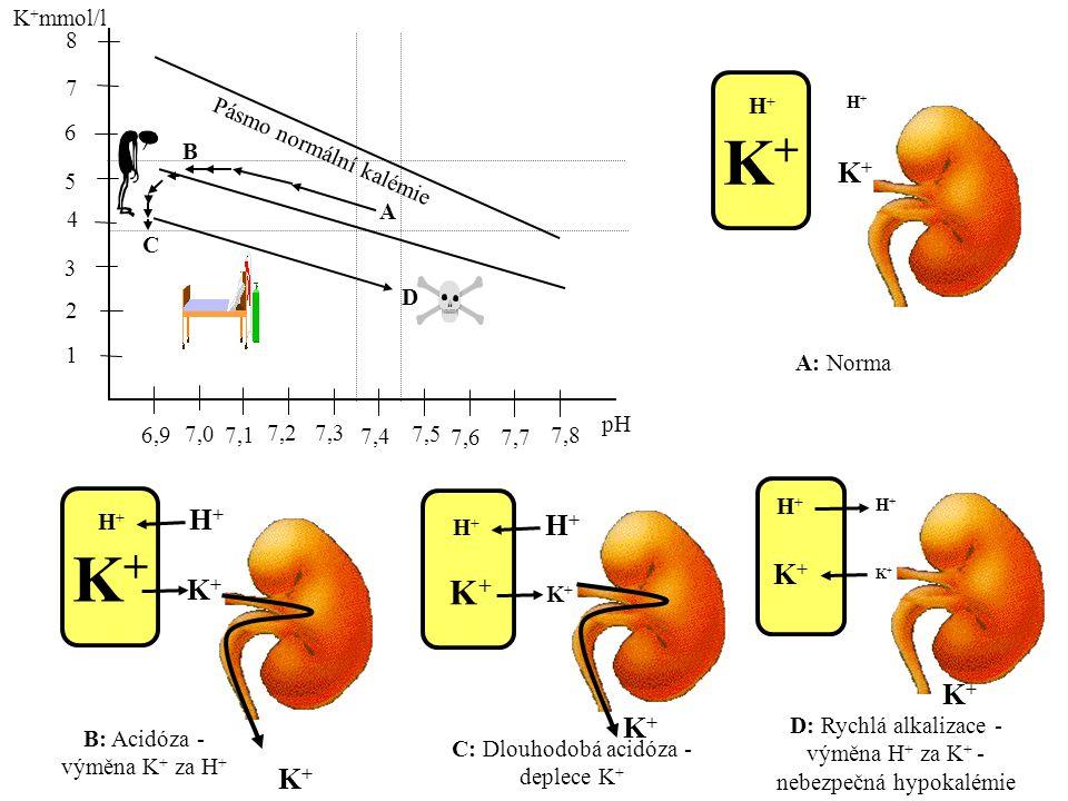 K+ K+ K+ K+mmol/l 8 7 H+ 6 B H+ B: Acidóza - výměna K+ za H+