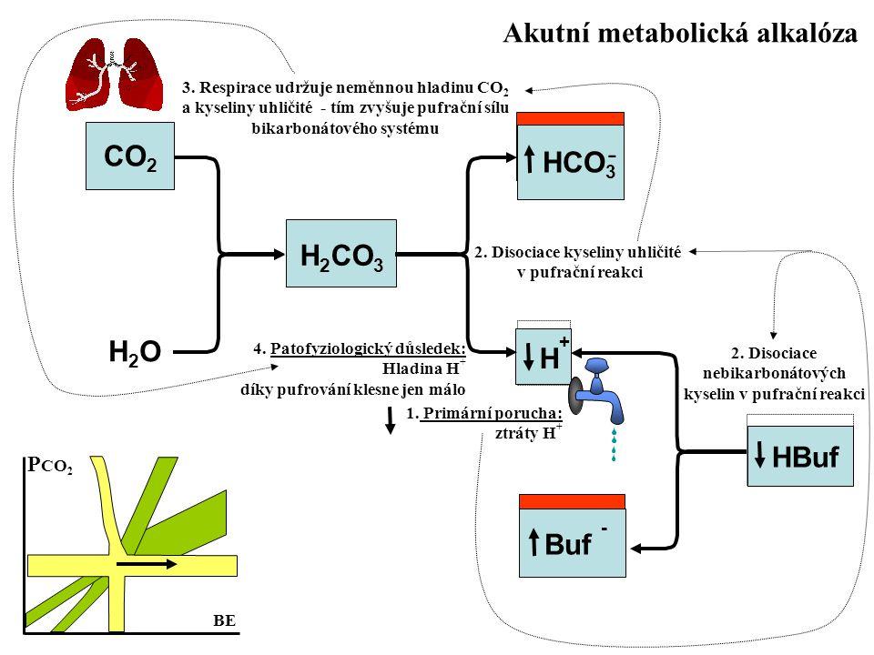 Akutní metabolická alkalóza