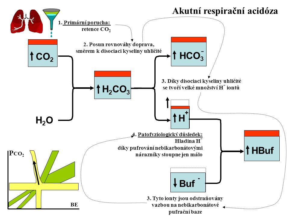 Akutní respirační acidóza
