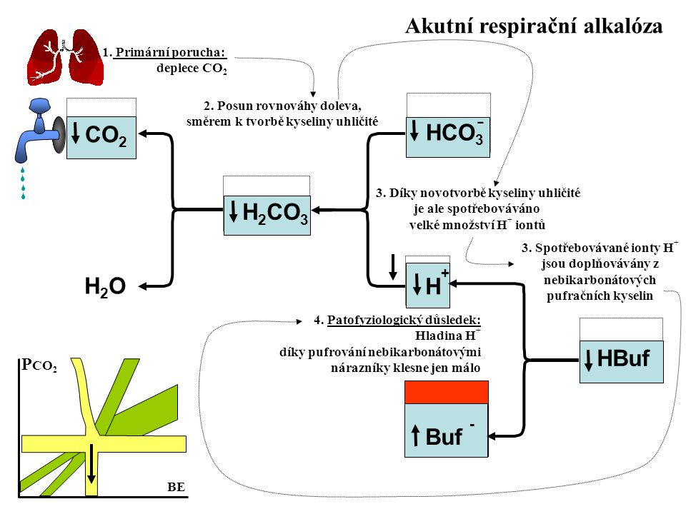 Akutní respirační alkalóza