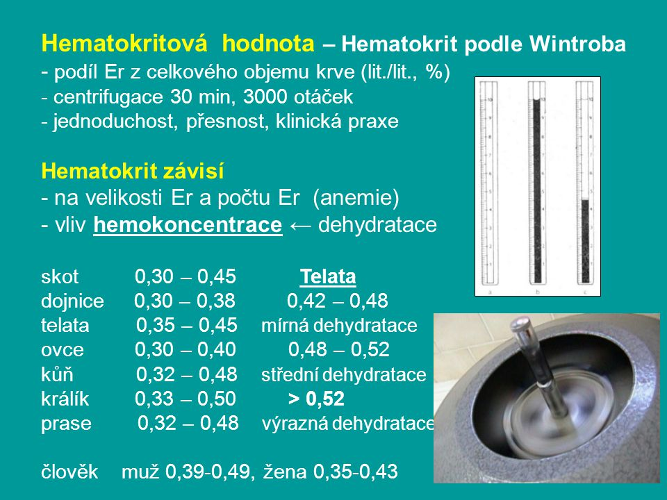 Hematokritová hodnota – Hematokrit podle Wintroba