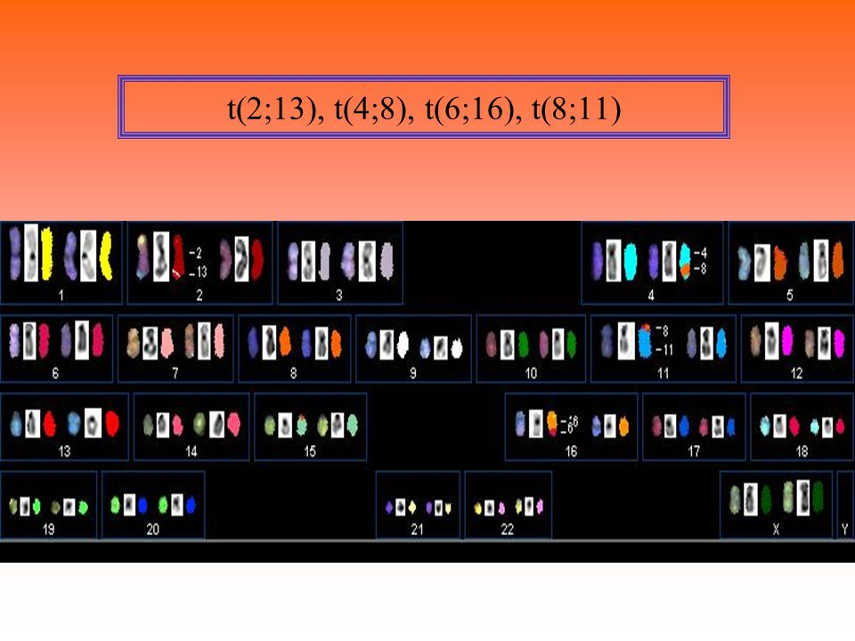 t(2;13), t(4;8), t(6;16), t(8;11)