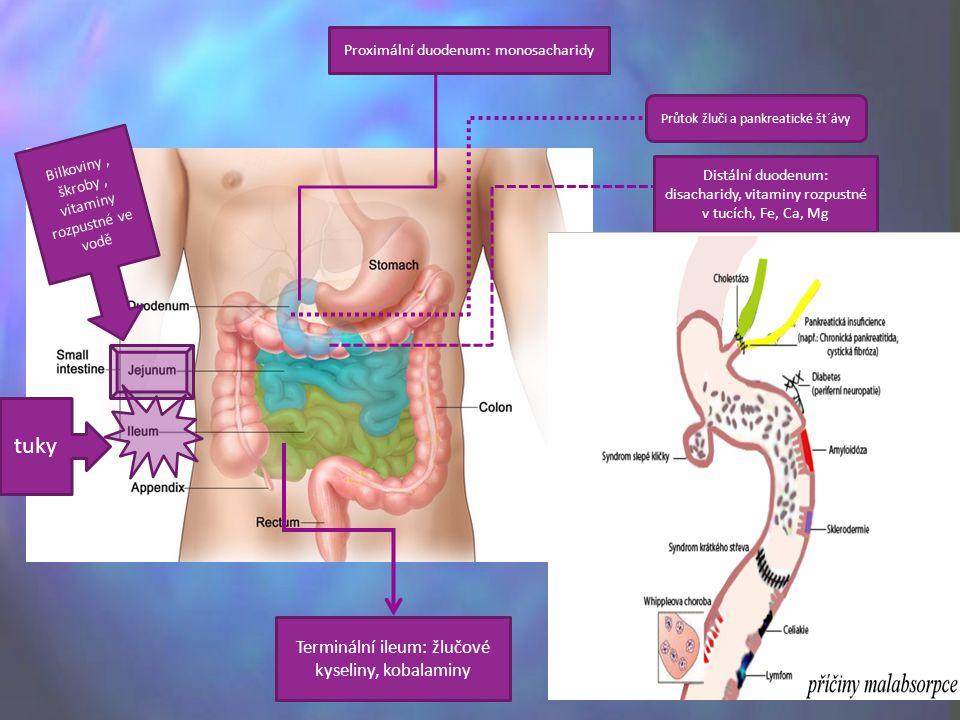 tuky Terminální ileum: žlučové kyseliny, kobalaminy