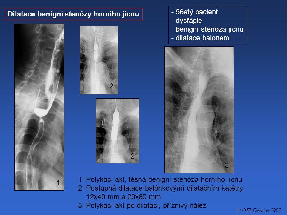 Dilatace benigní stenózy horního jícnu