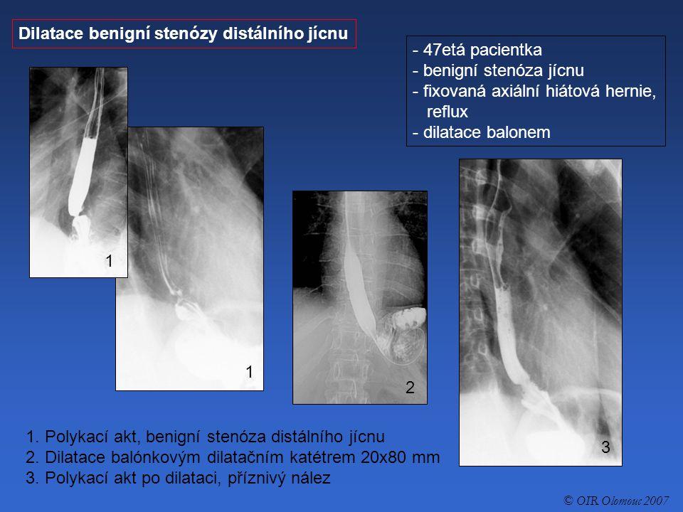 Dilatace benigní stenózy distálního jícnu 47etá pacientka
