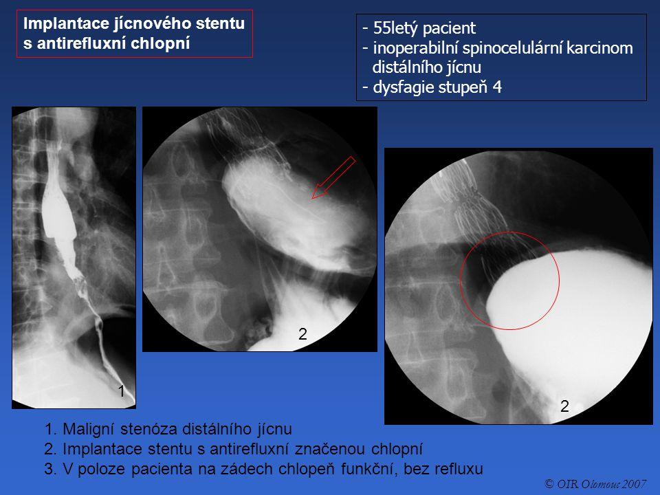 Implantace jícnového stentu s antirefluxní chlopní - 55letý pacient