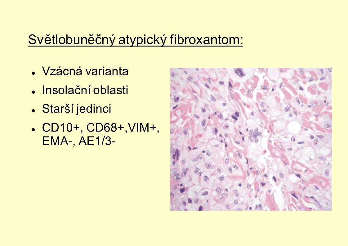 Světlobuněčný atypický fibroxantom: