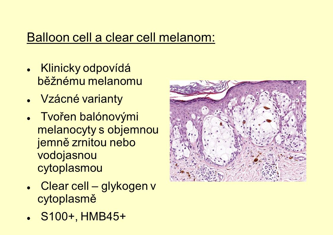 Balloon cell a clear cell melanom: