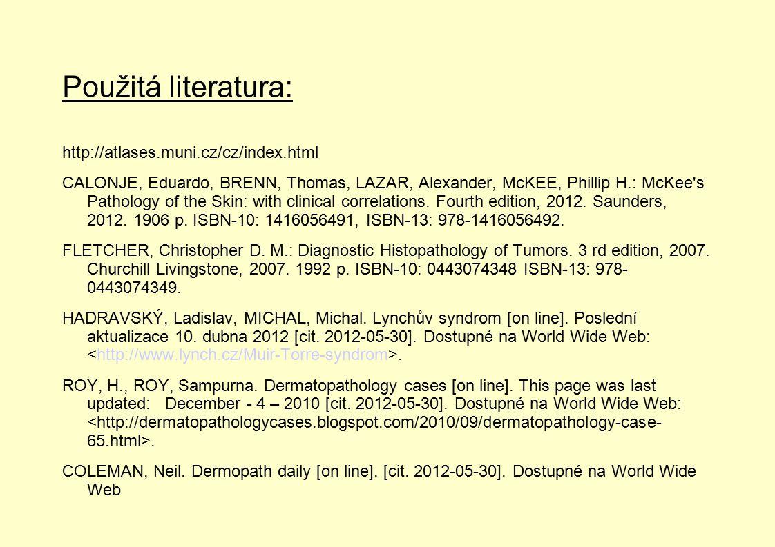 Použitá literatura: http://atlases.muni.cz/cz/index.html