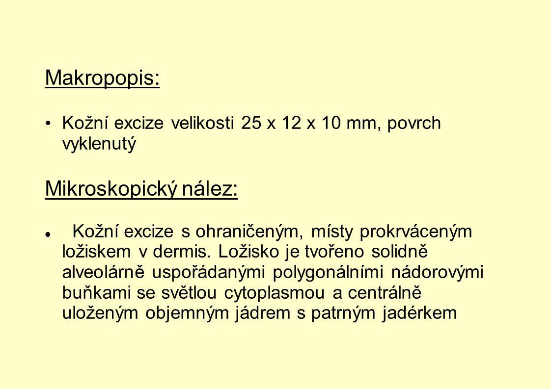 Makropopis: Mikroskopický nález: