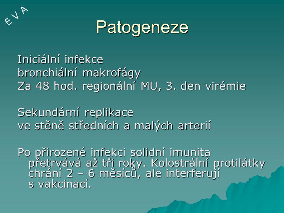 Patogeneze Iniciální infekce bronchiální makrofágy
