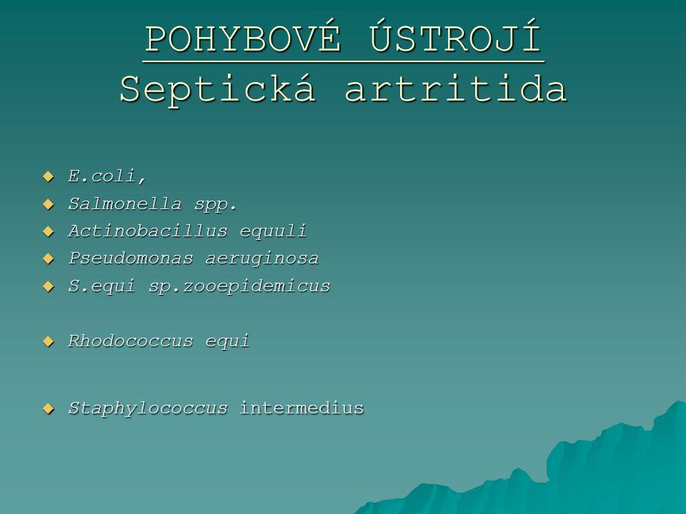 POHYBOVÉ ÚSTROJÍ Septická artritida