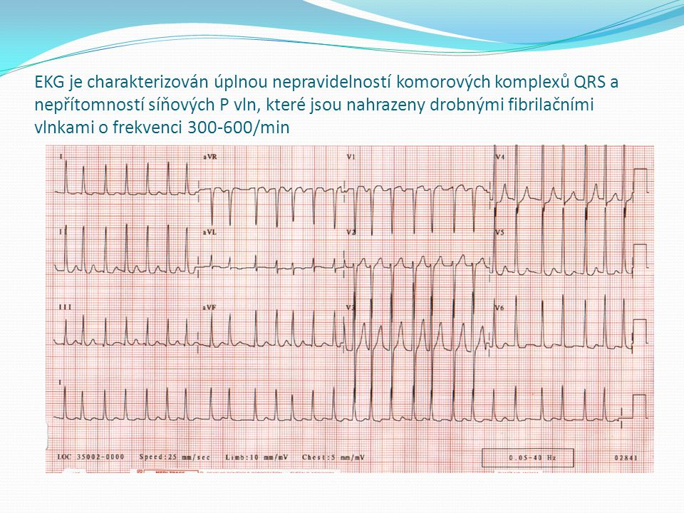 EKG je charakterizován úplnou nepravidelností komorových komplexů QRS a nepřítomností síňových P vln, které jsou nahrazeny drobnými fibrilačními vlnkami o frekvenci 300-600/min
