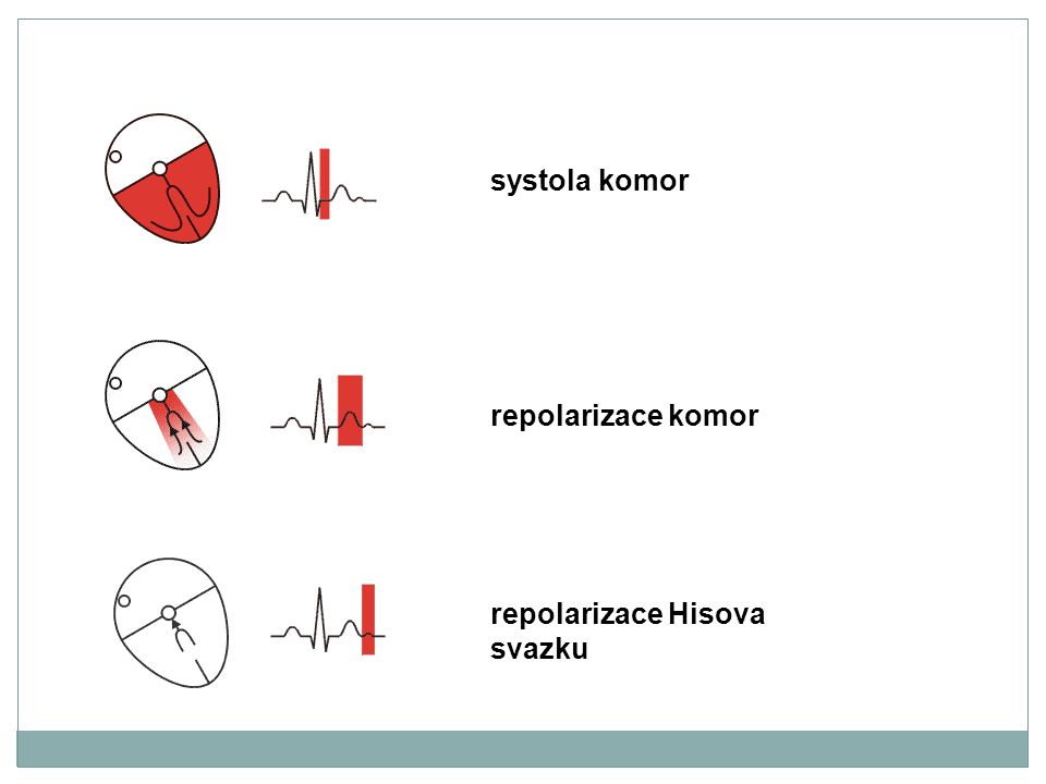systola komor repolarizace komor repolarizace Hisova svazku
