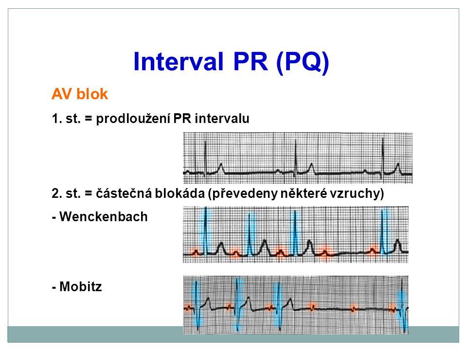Interval PR (PQ) AV blok 1. st. = prodloužení PR intervalu