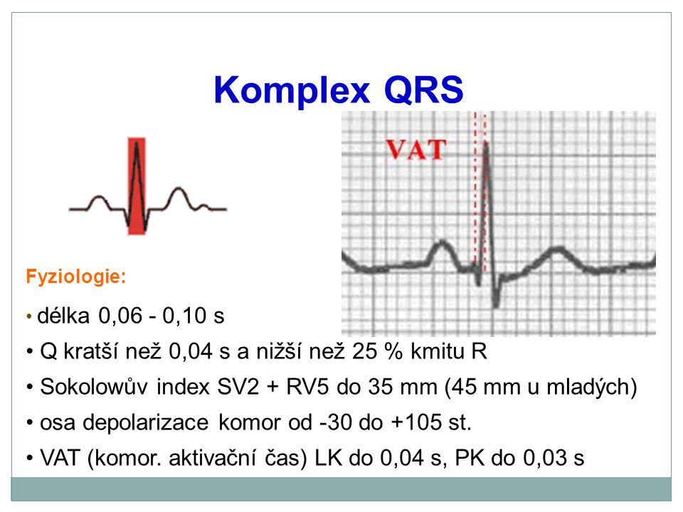 Komplex QRS Q kratší než 0,04 s a nižší než 25 % kmitu R