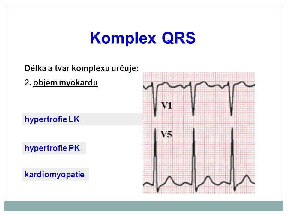 Komplex QRS Délka a tvar komplexu určuje: 2. objem myokardu