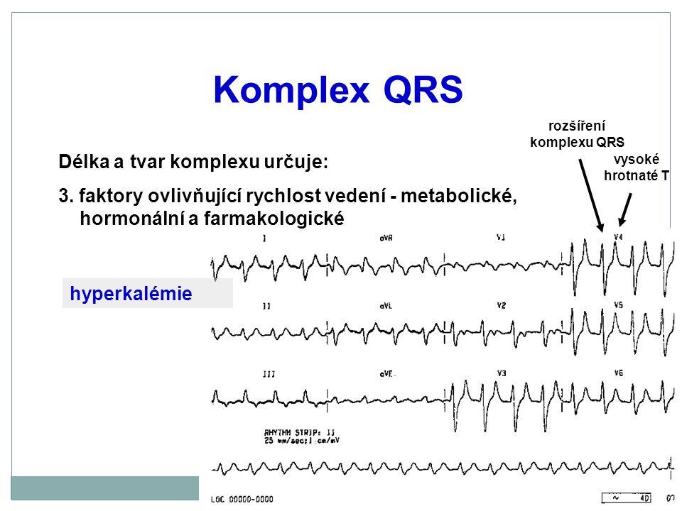 rozšíření komplexu QRS