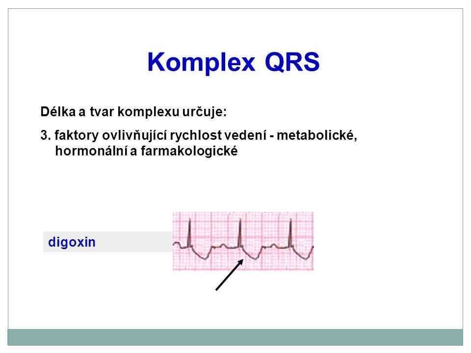 Komplex QRS Délka a tvar komplexu určuje: