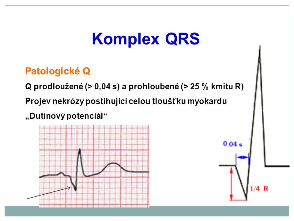 Komplex QRS Patologické Q
