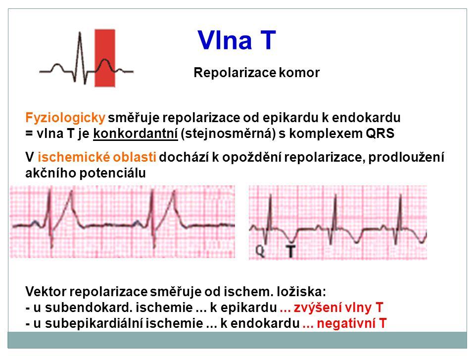 Vlna T Repolarizace komor