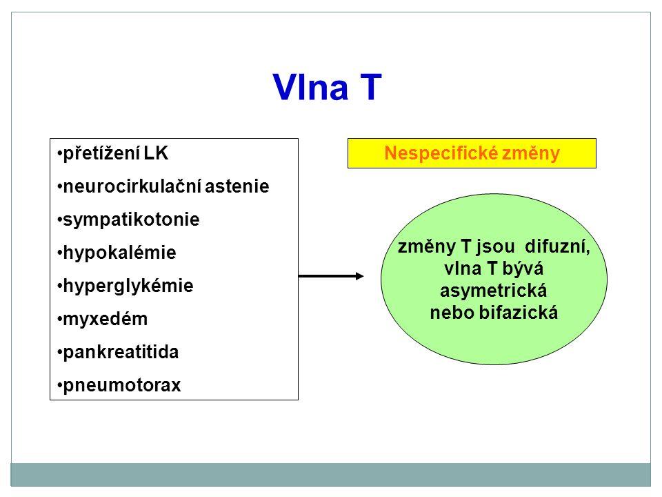 Vlna T přetížení LK neurocirkulační astenie sympatikotonie hypokalémie
