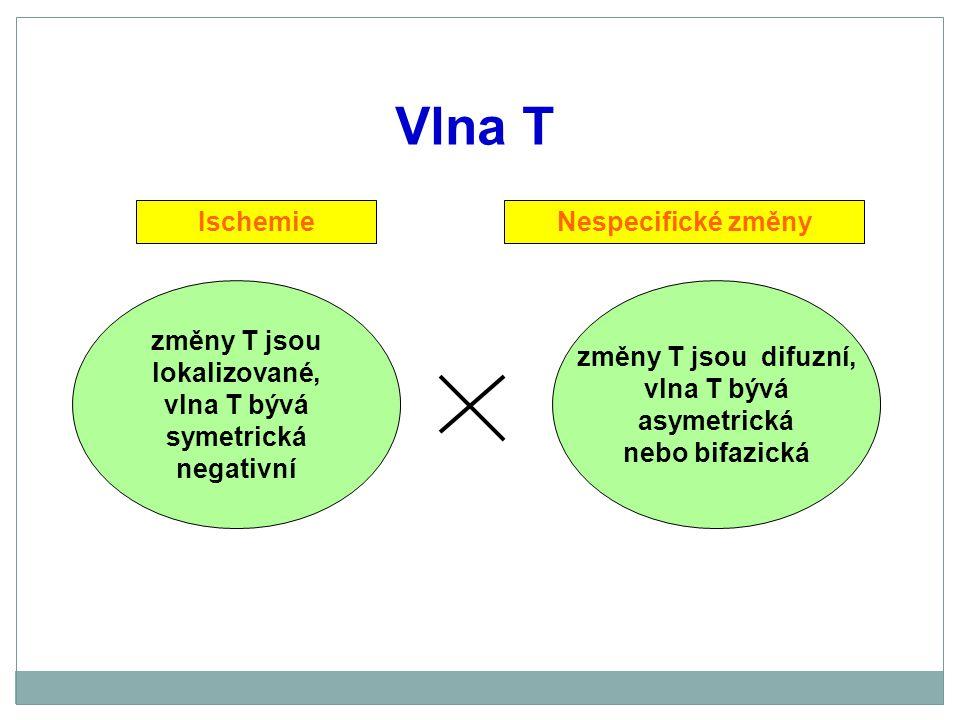 Vlna T Ischemie Nespecifické změny změny T jsou lokalizované,