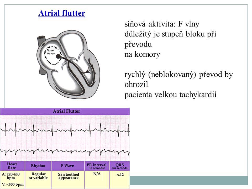 Atrial flutter síňová aktivita: F vlny. důležitý je stupeň bloku při převodu na komory.