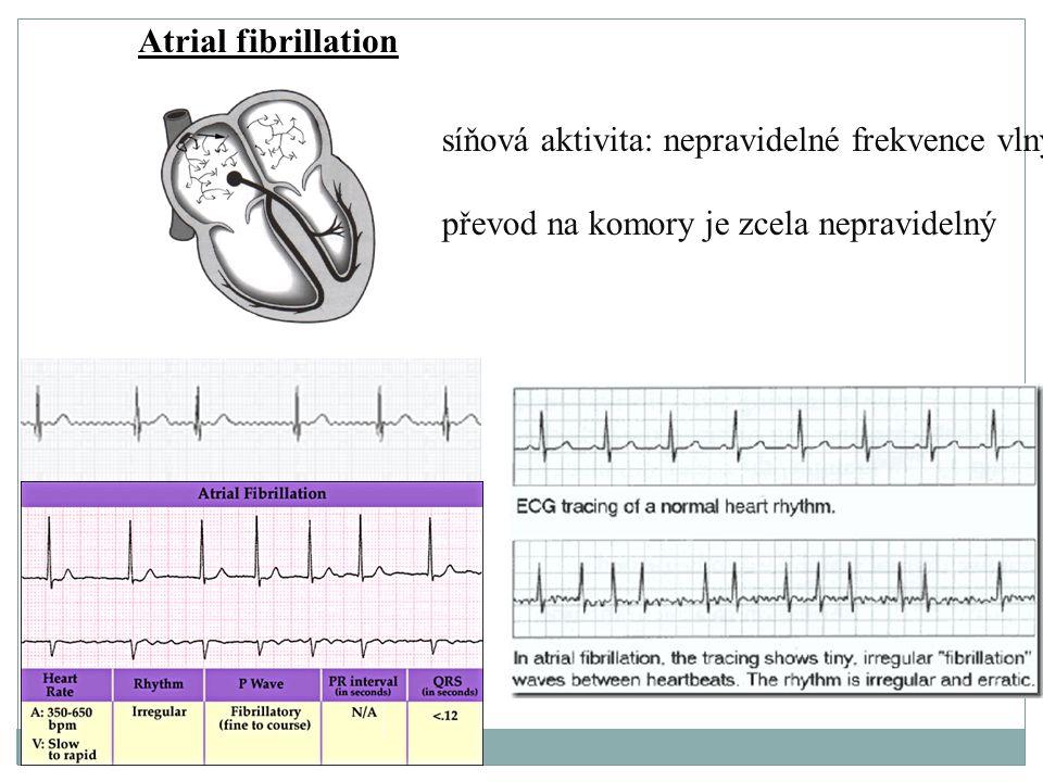 Atrial fibrillation síňová aktivita: nepravidelné frekvence vlny.
