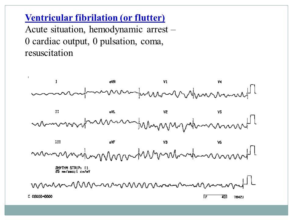 Ventricular fibrilation (or flutter)