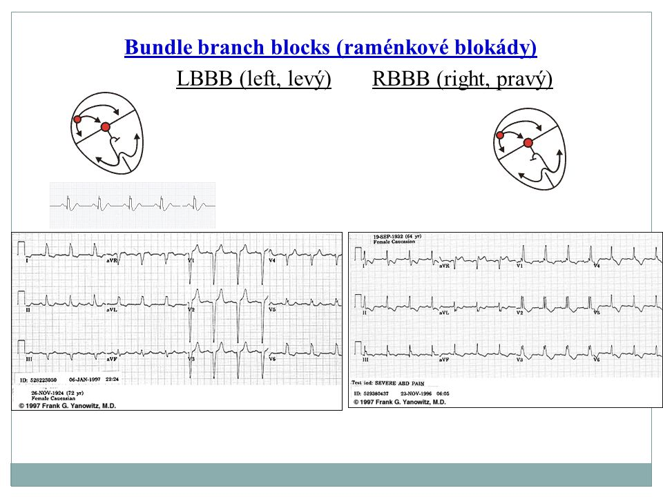 Bundle branch blocks (raménkové blokády)