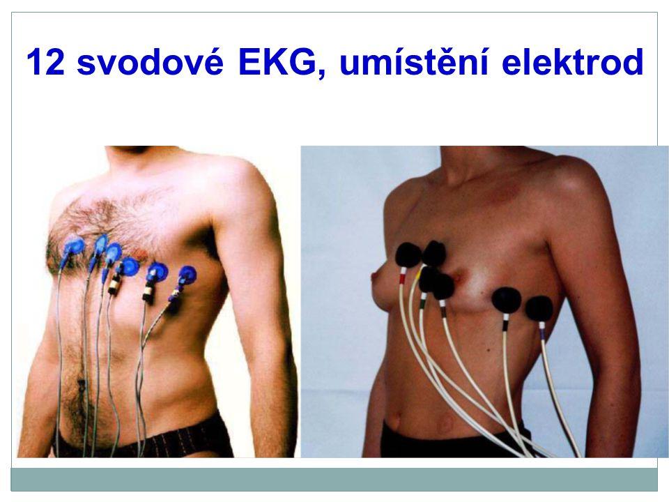 12 svodové EKG, umístění elektrod