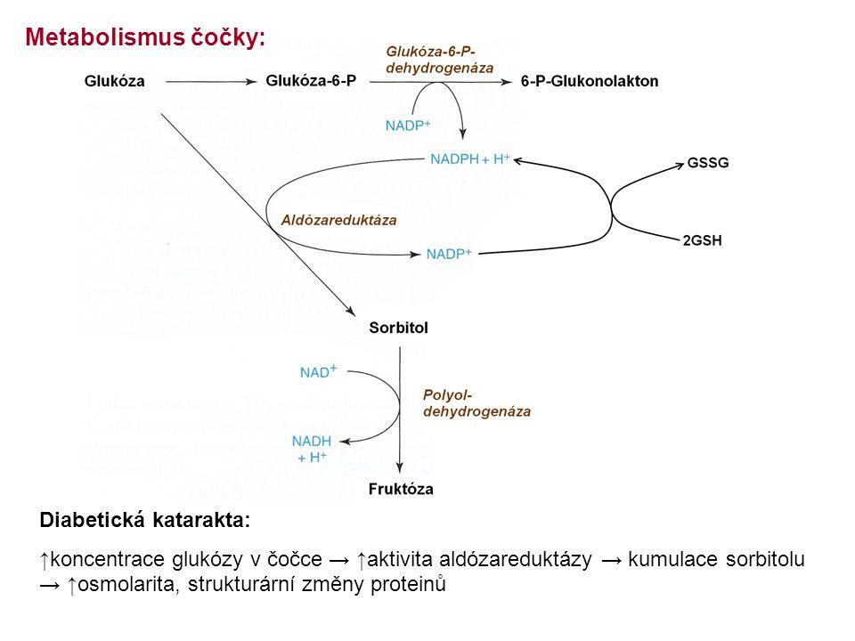 Metabolismus čočky: Diabetická katarakta:
