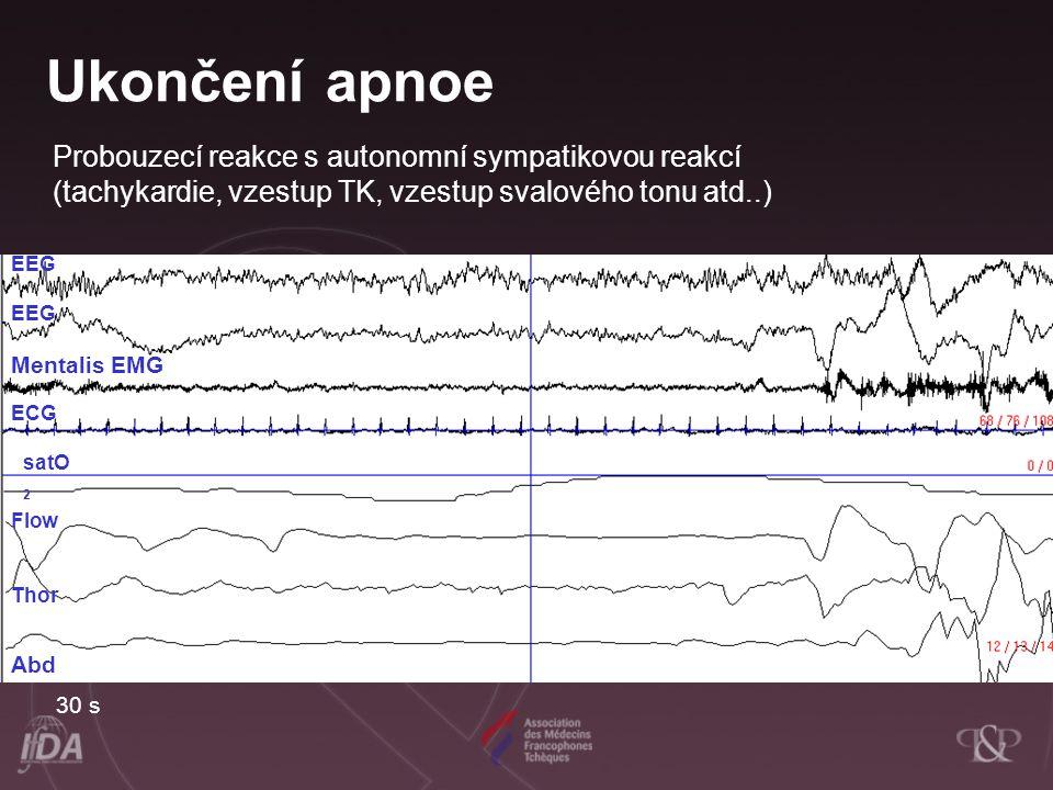 Ukončení apnoe Probouzecí reakce s autonomní sympatikovou reakcí (tachykardie, vzestup TK, vzestup svalového tonu atd..)