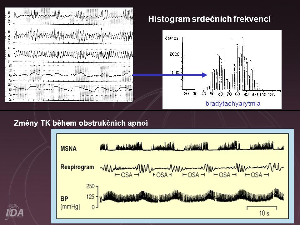 Histogram srdečních frekvencí