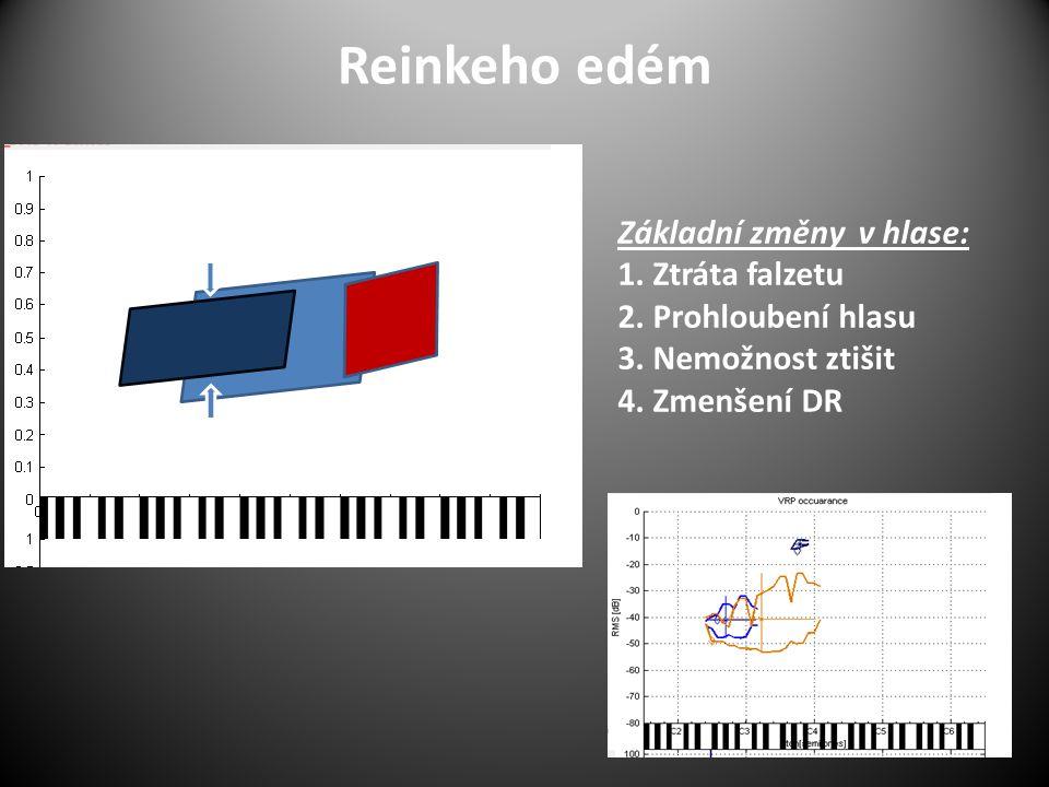 Reinkeho edém Základní změny v hlase: 1. Ztráta falzetu