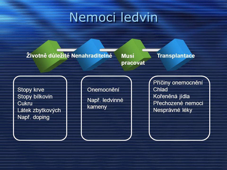 Nemoci ledvin Životně důležité Nenahraditelné Musí pracovat