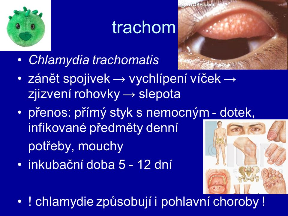 trachom Chlamydia trachomatis