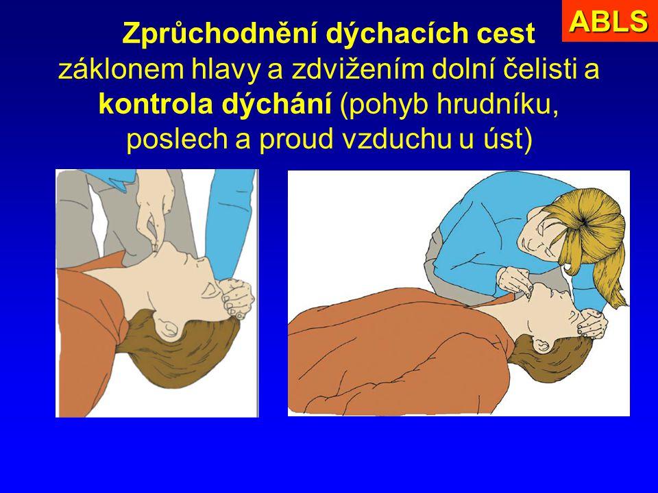 ABLS Zprůchodnění dýchacích cest záklonem hlavy a zdvižením dolní čelisti a kontrola dýchání (pohyb hrudníku, poslech a proud vzduchu u úst)