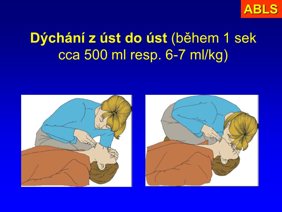 Dýchání z úst do úst (během 1 sek cca 500 ml resp. 6-7 ml/kg)