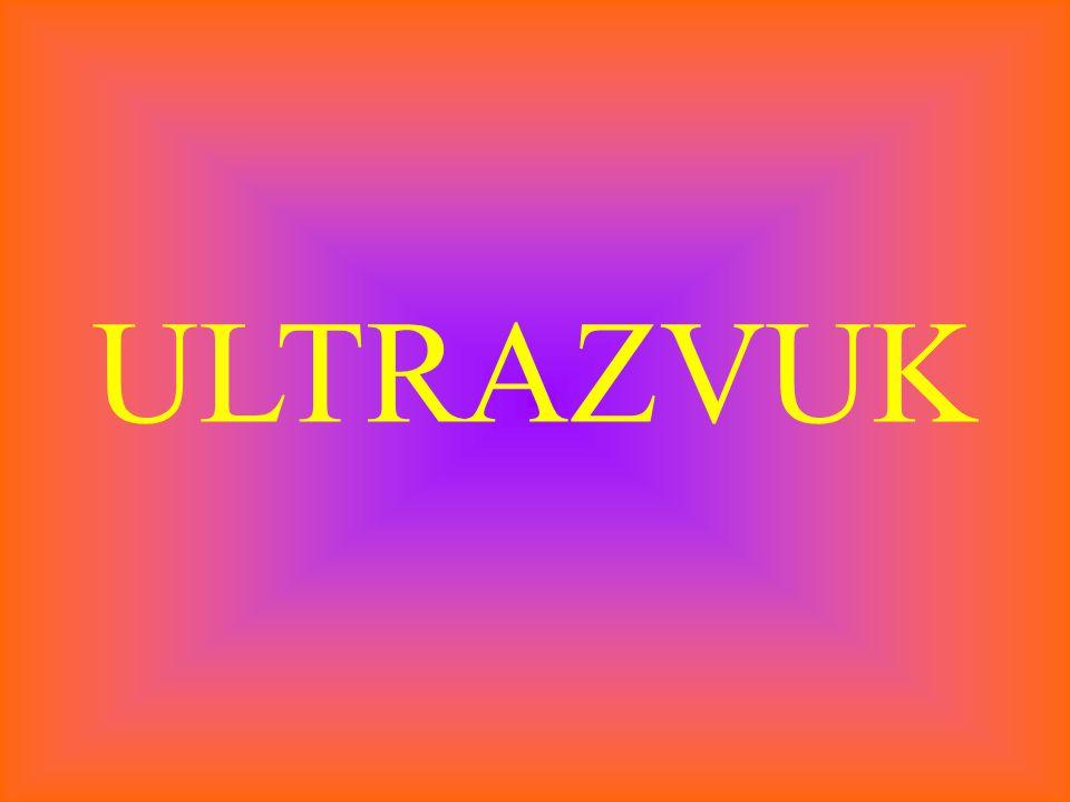 ULTRAZVUK