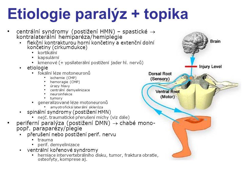 Etiologie paralýz + topika