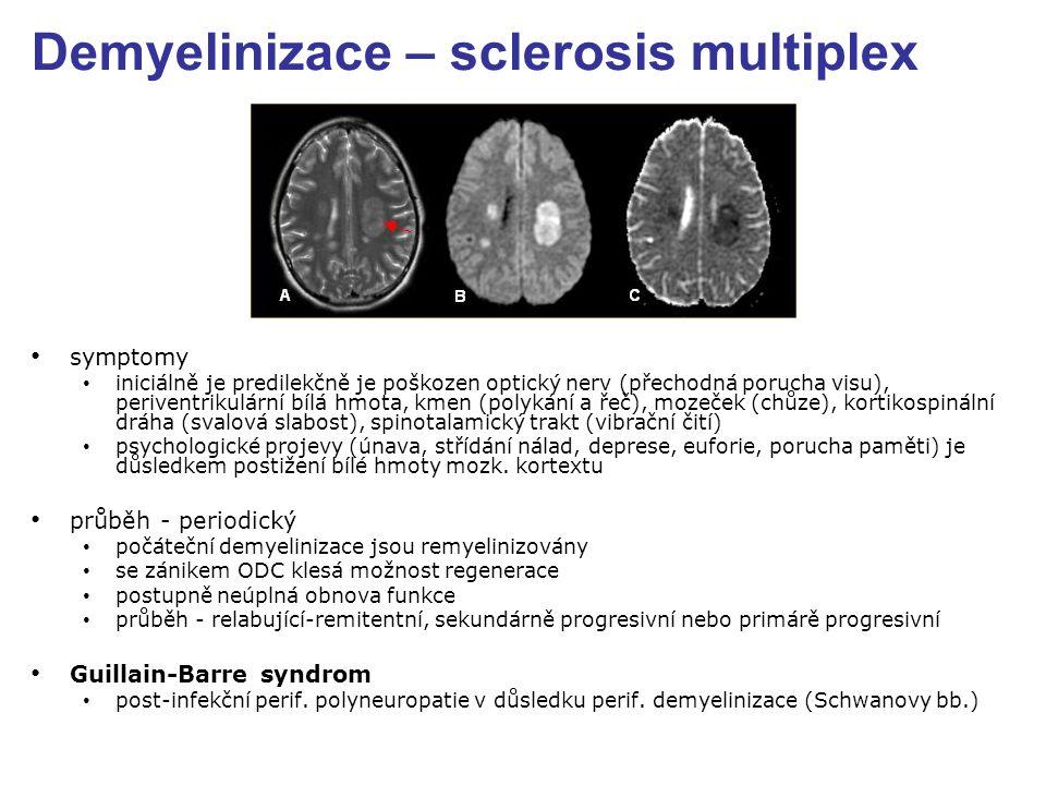 Demyelinizace – sclerosis multiplex