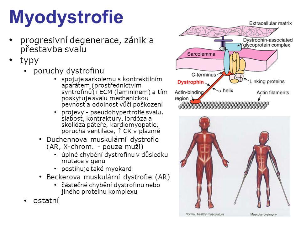 Myodystrofie progresivní degenerace, zánik a přestavba svalu typy