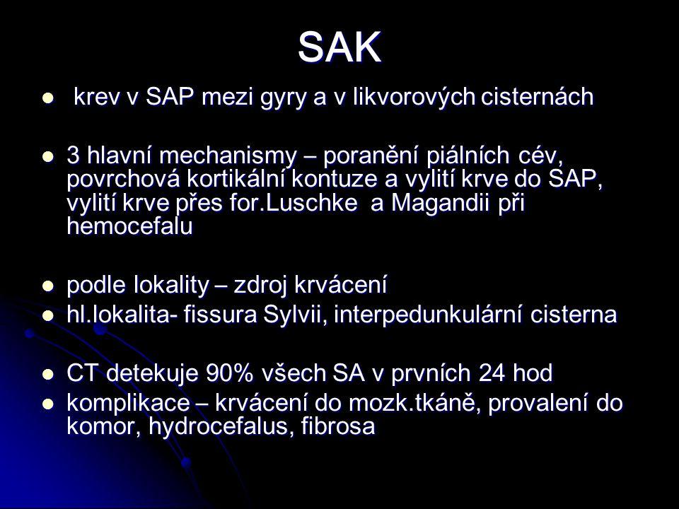 SAK krev v SAP mezi gyry a v likvorových cisternách