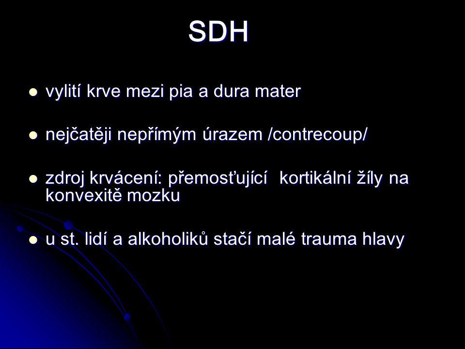 SDH vylití krve mezi pia a dura mater