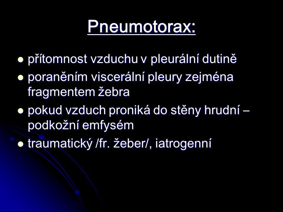 Pneumotorax: přítomnost vzduchu v pleurální dutině