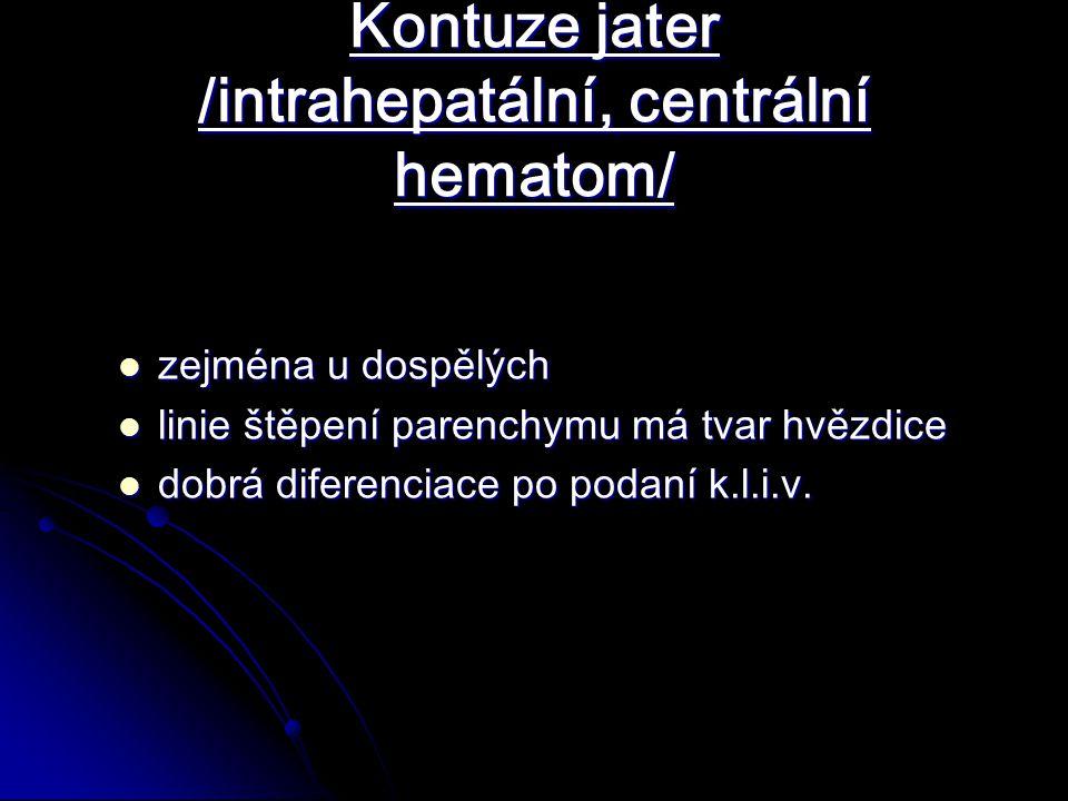 Kontuze jater /intrahepatální, centrální hematom/